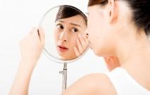 肌トラブルと便秘の関係
