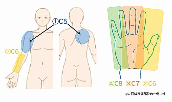 疼痛部位の一例