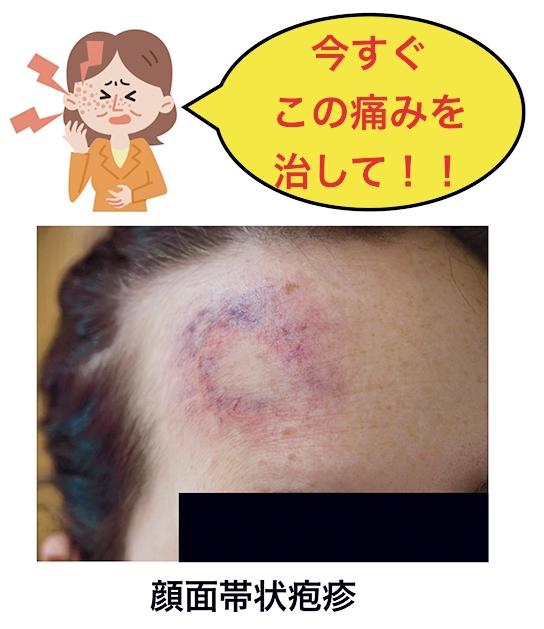 顔面帯状疱疹