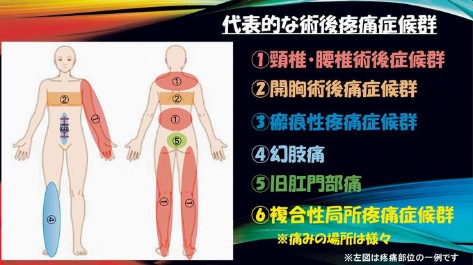 『術後疼痛症候群』の代表的なものとその特徴