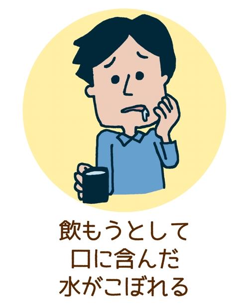 脳梗塞の症状「口から水がこぼれる」