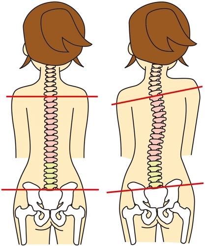 骨盤がゆがむと背骨も歪むイメージ